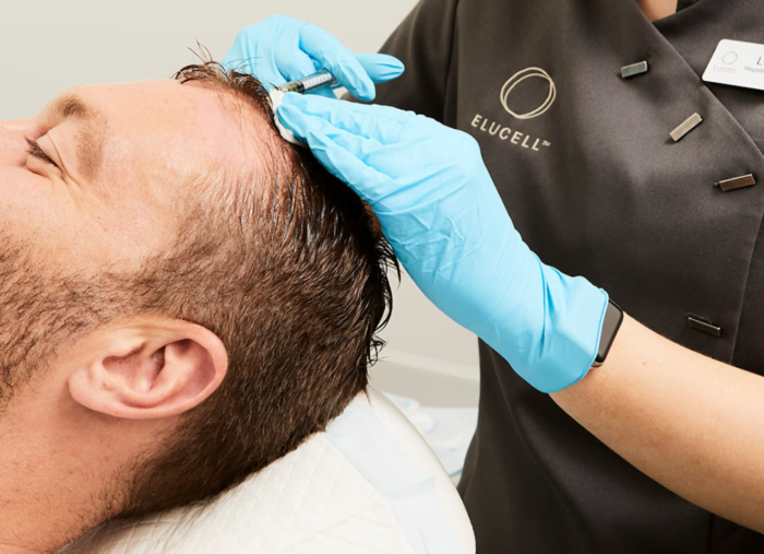 PRP (Platelet Rich Plasma) Hair Loss Injections