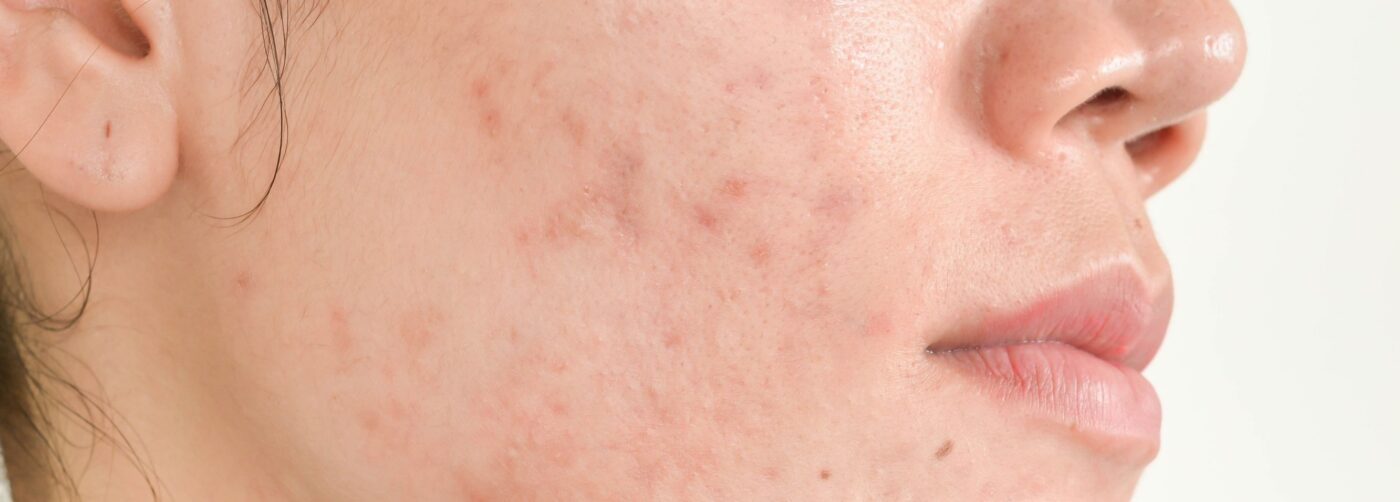 Your New Solution to Acne Scar Treatment: Procedure and Final Results