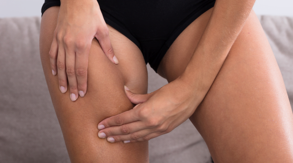 Cellulite Treatment: How to Get Rid of Cellulite and Get the Body of Your Dreams
